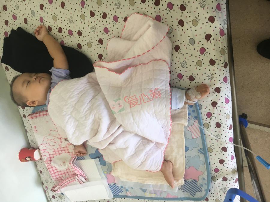 患神母细胞瘤4S期的7个月大女孩